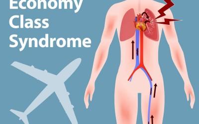 Syndrom klasy ekonomicznej – Zakrzepica żył głębokich kończyn dolnych