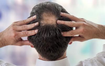 Łysienie androgenowe – Przyczyny, leczenie