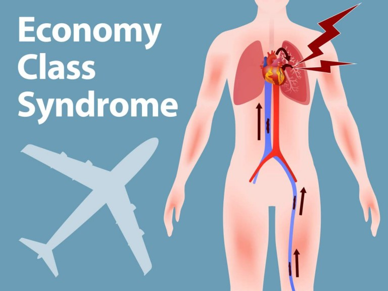 economy class syndrome